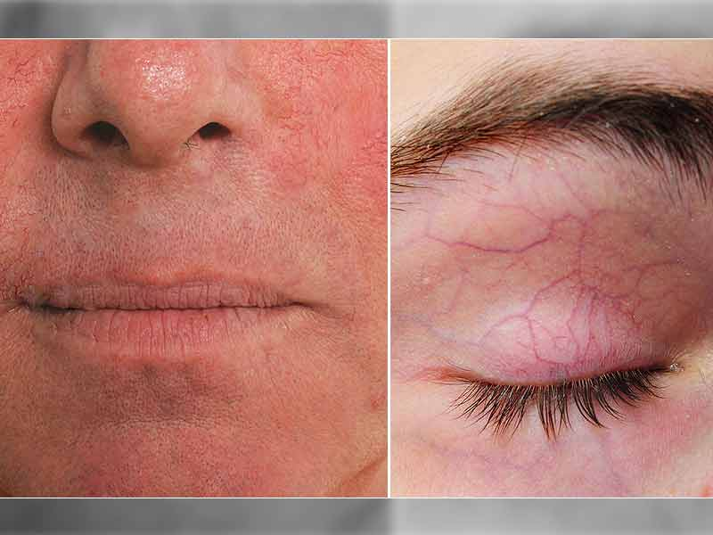 How To Get Rid Of Broken Capillaries From The Face - lifealth