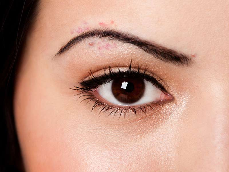 How to get rid of acne after threading eyebrows - lifealth