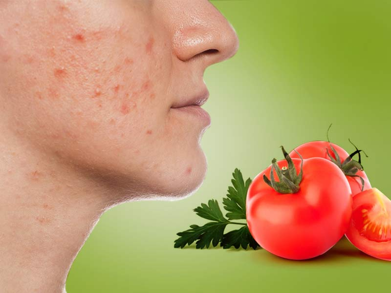 how to get rid of red spots on skin naturally